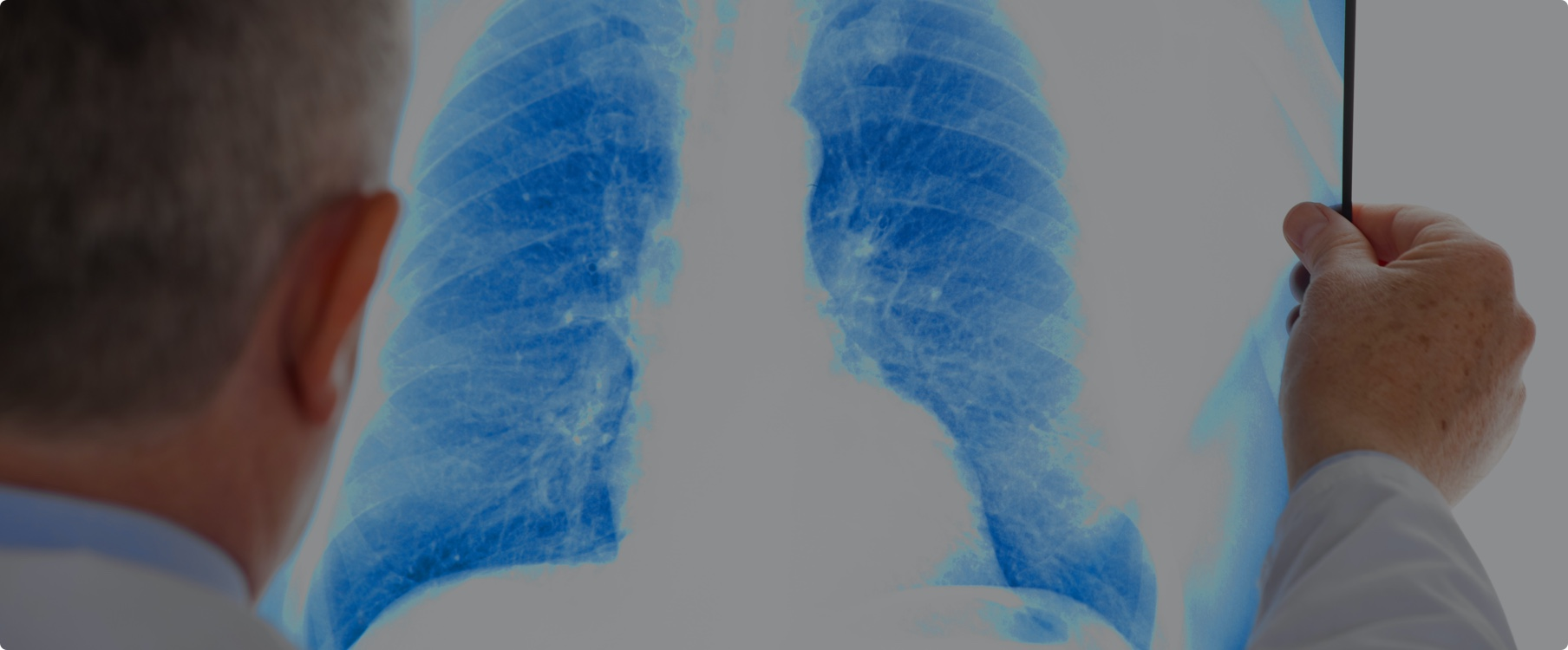 A doctor looking a chest x-ray image